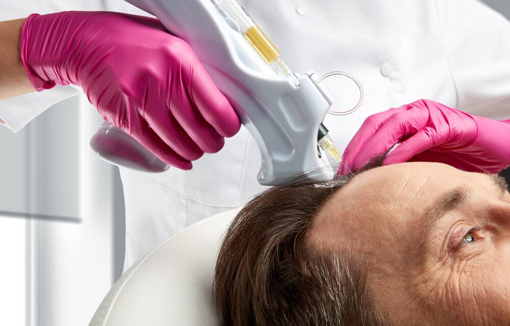 Effectiveness of Platelet Rich Plasma (PRP) on Hair Health